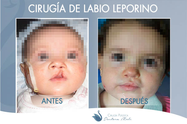 antes y despues labio leporino