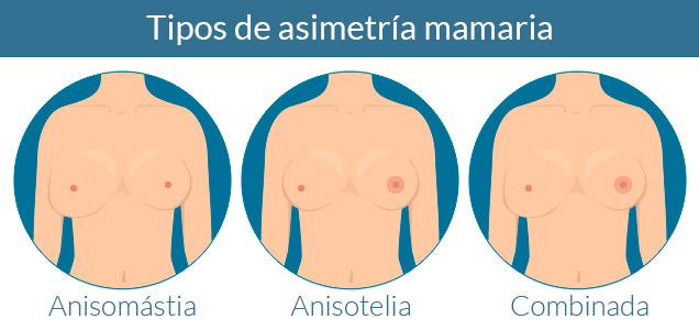 Cirugía plástica Madrid asimetría mamaria