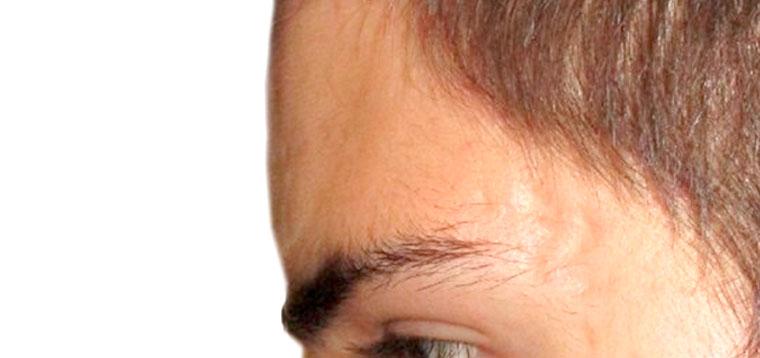 Cicatrices, Lunares, Quistes y Lesiones de la Piel