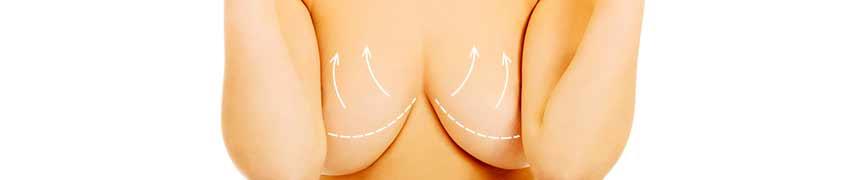 Cirugía plástica Madrid reducción de mamas
