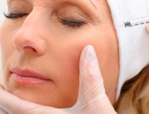 Tratamientos complementarios a la blefaroplastia ¡Rejuvenecimiento total!