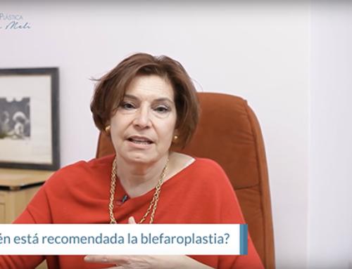 ¿Para quién está recomendada la blefaroplastia?