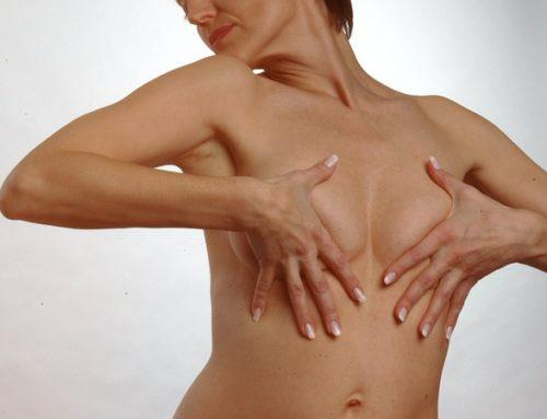 Tipos de cirugía de mamas que realizamos en la clínica de la Dra. Meli