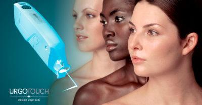 UrgoTouch: el láser que evita las cicatrices visibles
